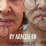 Botox_Lips_Better Skin